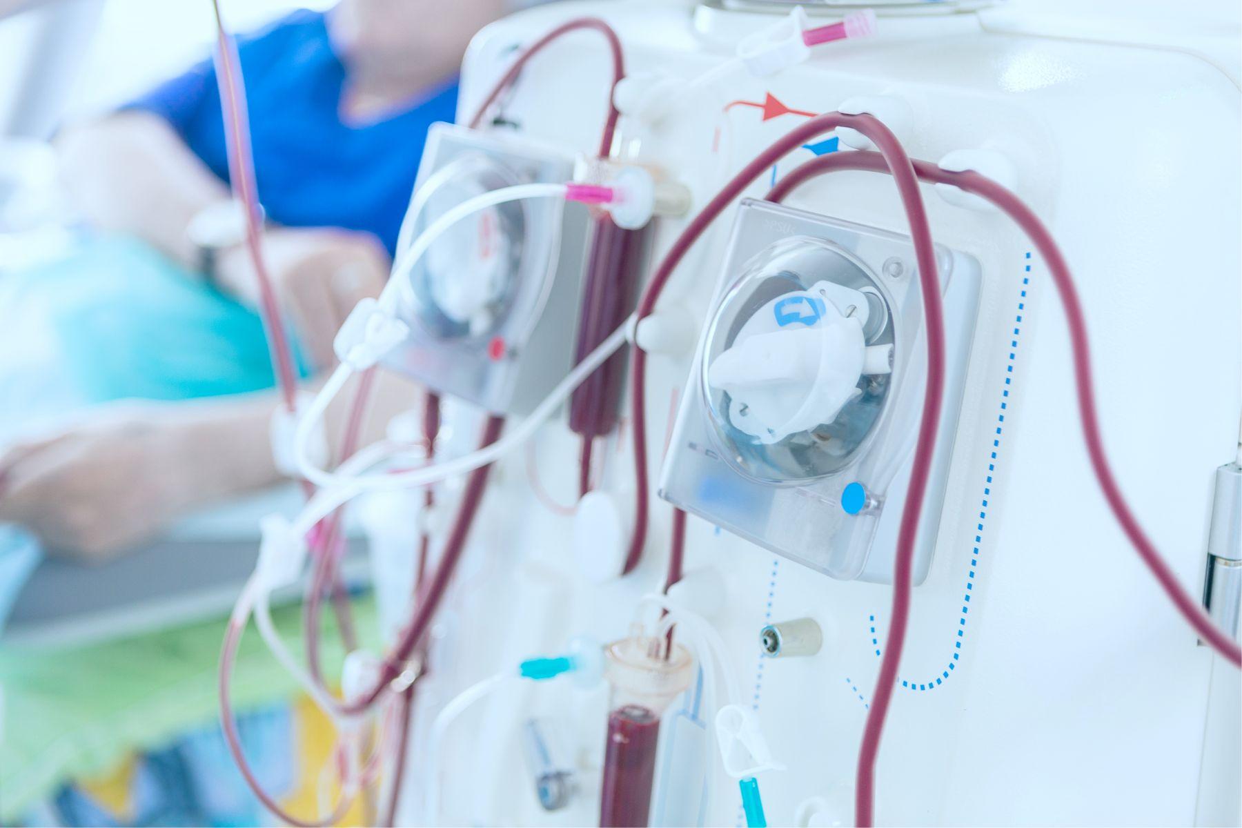 小心洗腎危機!腎臟科名醫列小便顏色表:一秒看到尿液的隱藏病症
