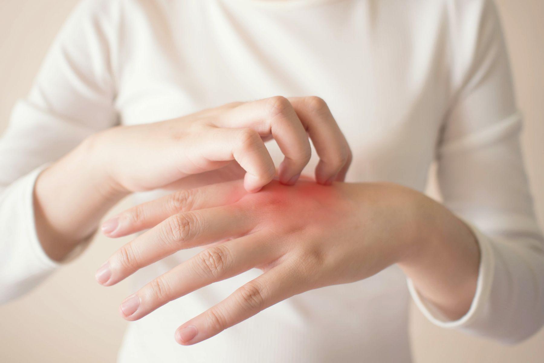 濕疹吃香菇更發炎、搔癢難耐?除了擦藥,吃2食物舒緩皮膚過敏、紅疹症狀