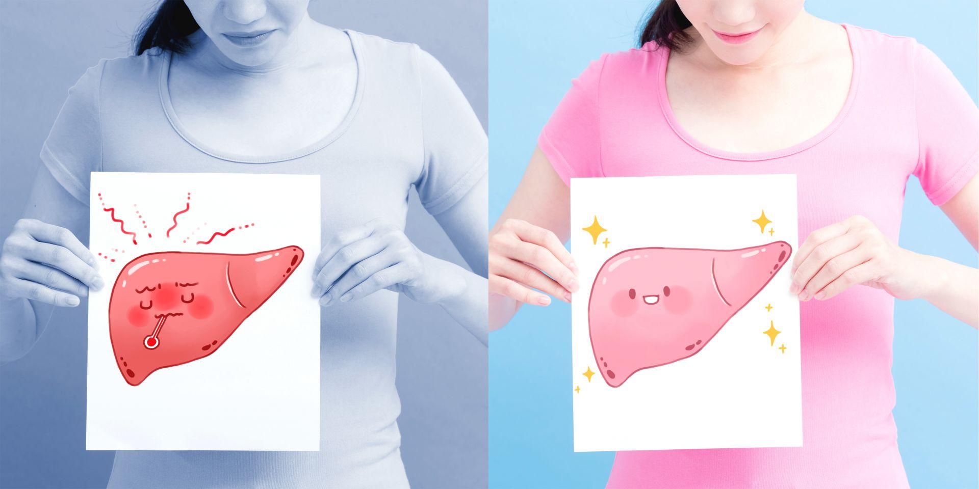 錢政弘醫師:減重最有效!百分百減少肝脂肪、8成肝纖維化改善