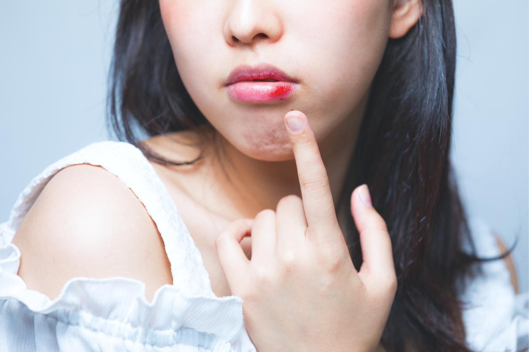 常嘴破是荷爾蒙失調、免疫力低!狂漱鹽水只會越破越大洞