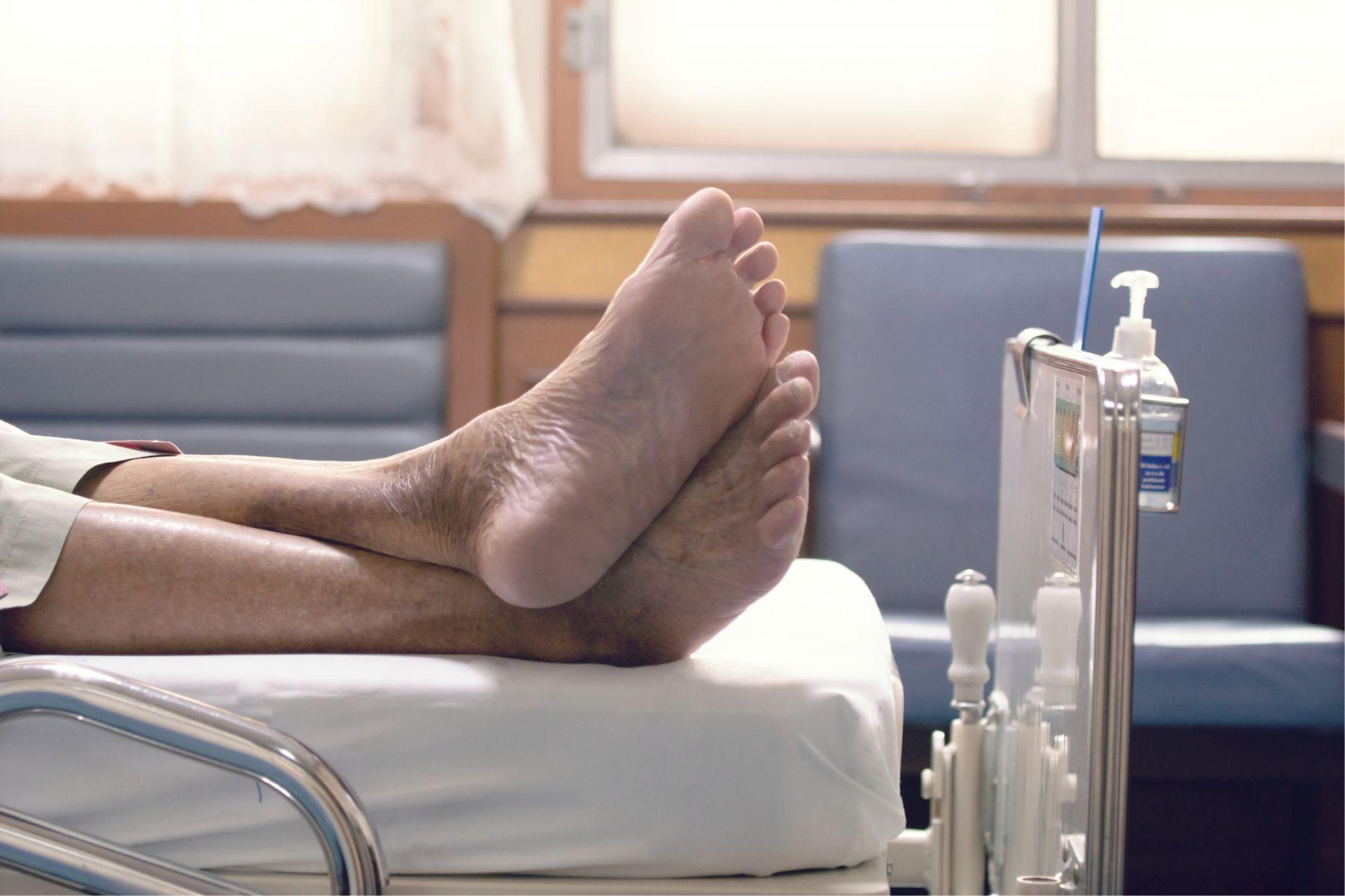 他腳痛...竟是「腎癌」轉移!醫勸:出現腰痛、血尿一定要小心
