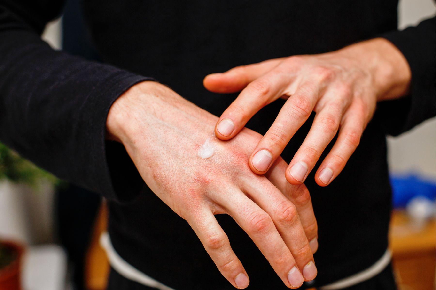 濕疹是因缺乏維生素D?藥師:除了擦藥,6食物有助舒緩皮膚癢、過敏、發炎和皰疹