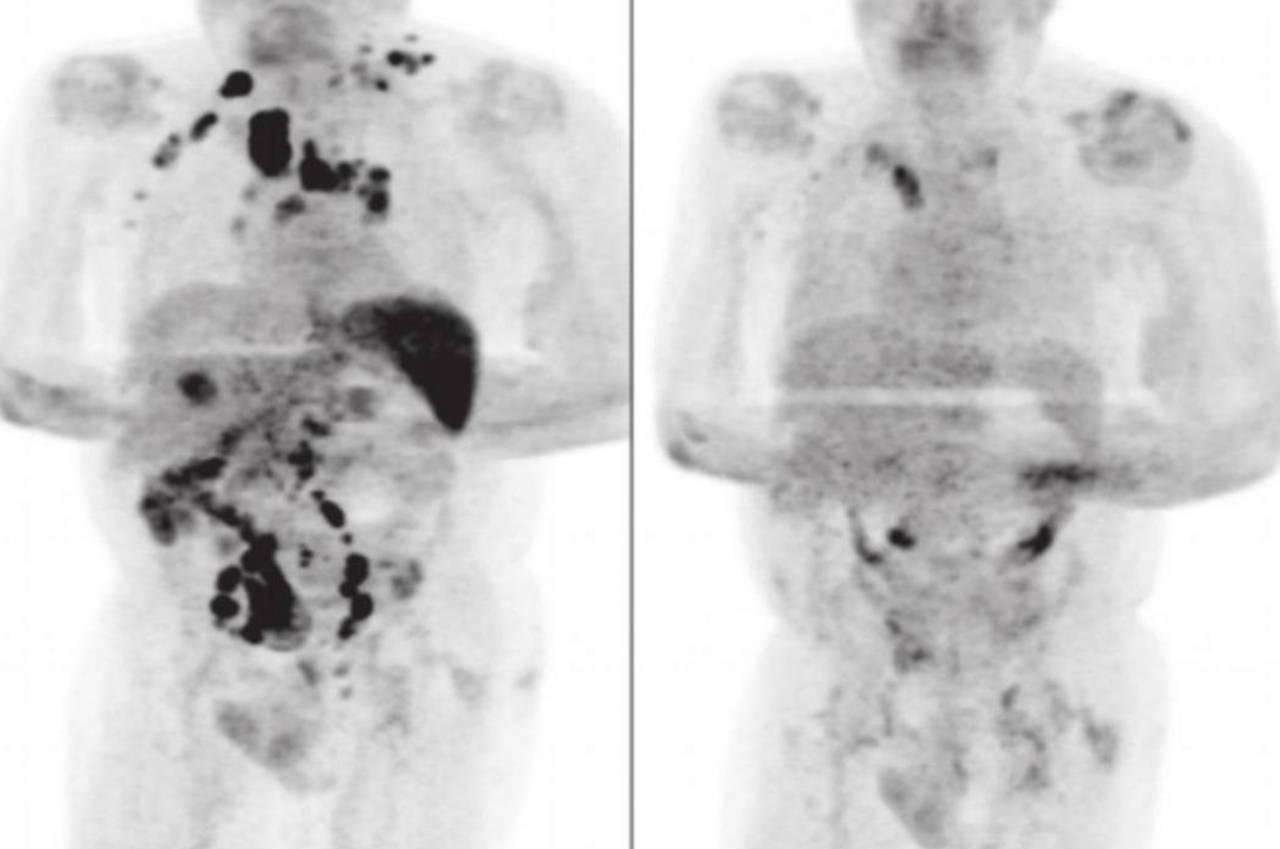 英癌友染疫後腫瘤全消失 專家曝不藥而癒可能原因
