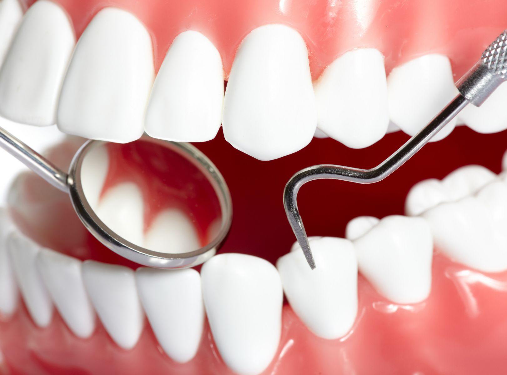未來蛀牙的救星,科學家開發出能直接修復琺瑯質的凝膠