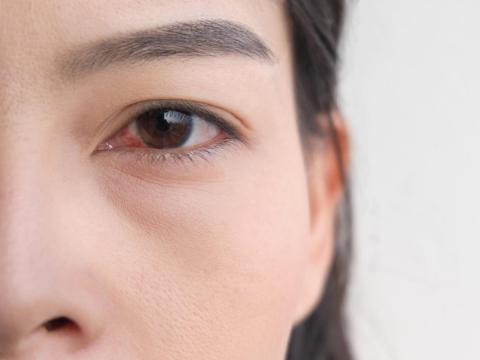 「皮蛇」可能長在眼睛!醫師:嚴重恐失明,出現2症狀是重要警訊