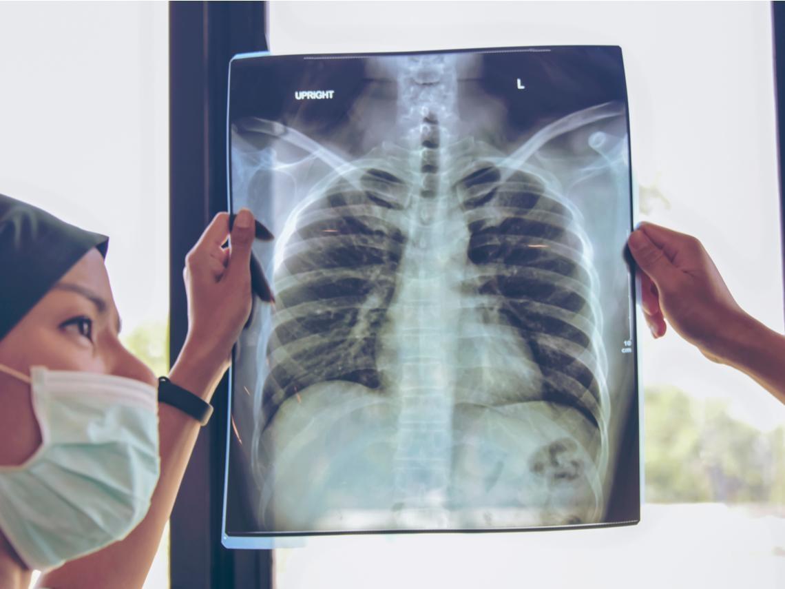 胸部X光檢查「無異常」卻罹癌...台大肺癌權威:出現這6種症狀,通常已步入肺癌晚期