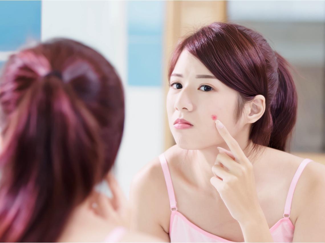 皮膚長斑、有痣甚至腫塊,是皮膚癌前兆?醫:60歲後容易發生,有5種變化特別注意