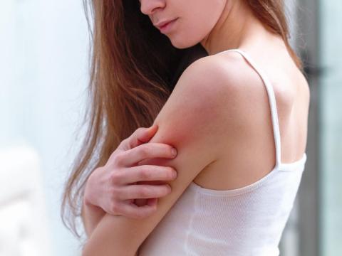疫情壓力大,慢性蕁麻疹患者心酸誰人知!醫師:掌握5不3要,真正緩解過敏症狀