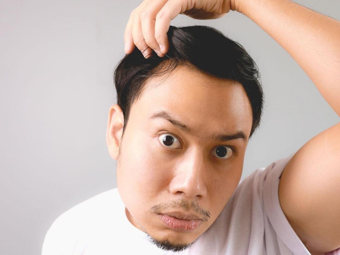 壓力大、作息差  台灣掉髮族年輕化