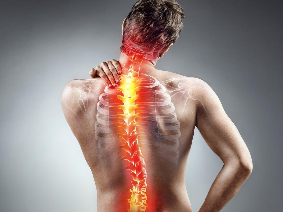 長期腰痠背痛 竟是僵直性脊椎炎