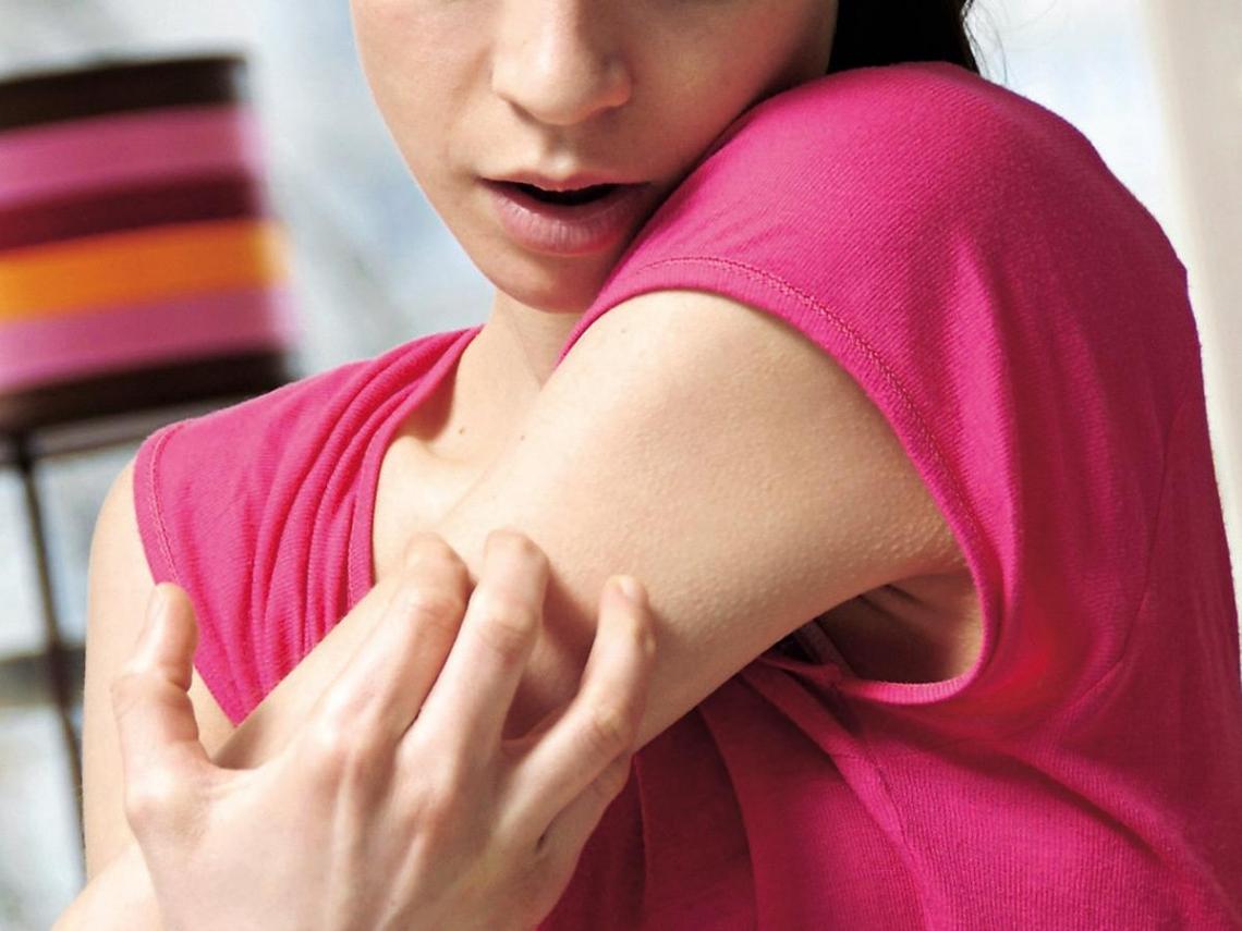 預防冬季癢  肌膚保溼是關鍵