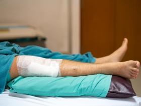 下肢冰冷痠痛恐是腳中風!三高患者小心這些症狀