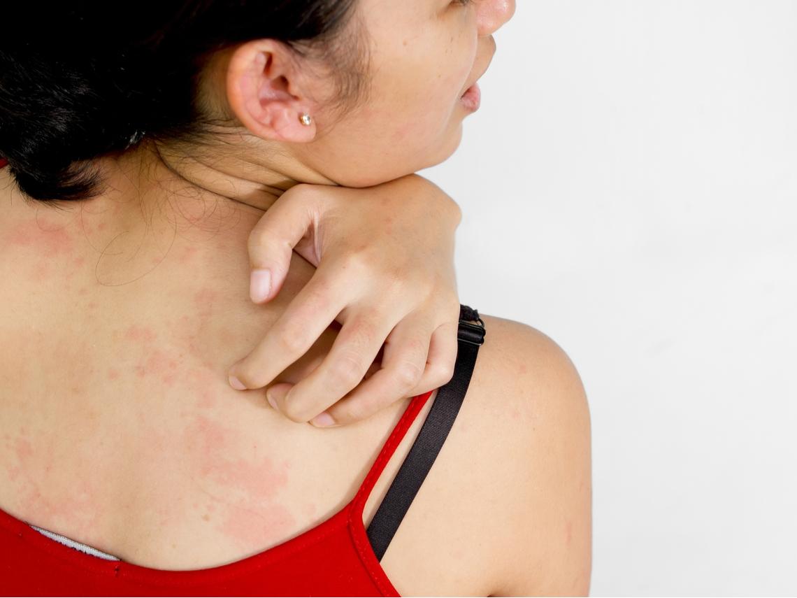 皮膚過敏搔癢難耐?營養師:補充3大營養素,降低發炎反應
