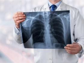 空汙是關鍵?夫妻先後確診肺癌 醫師:早期無症狀,4大高危險群定期檢查