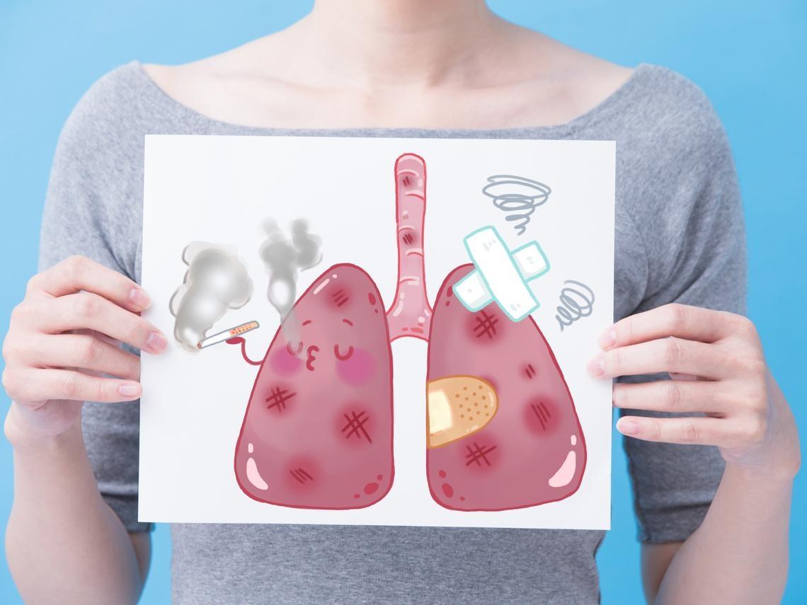 57歲家庭主婦不菸不酒,罹肺癌第二期 醫師:這四種人是高危險群