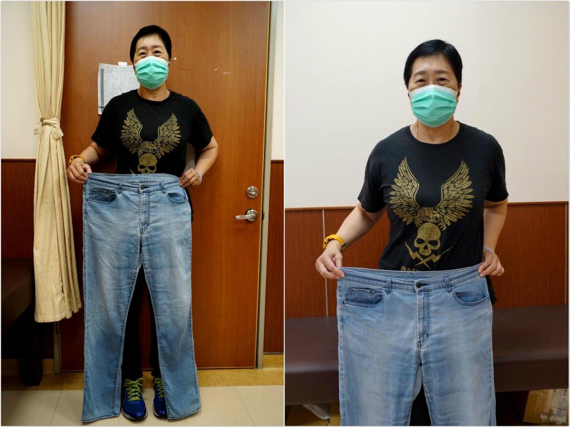 55歲成功甩肉12公斤!不吃減肥藥,她靠中藥、針灸健康瘦身