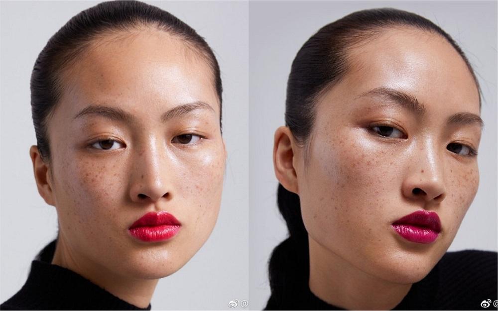 模特兒滿臉雀斑 ZARA廣告遭中國網友疑辱華