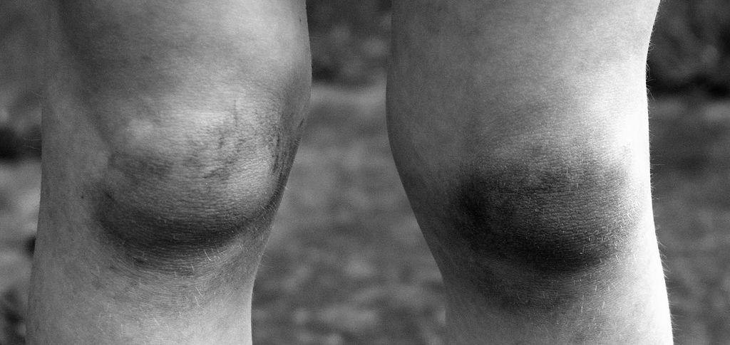 不再忍痛強撐變形腿 換關節高齡不是禁忌