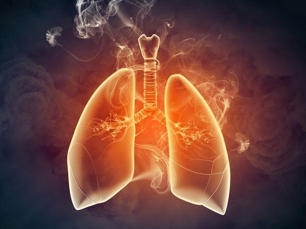 空汙問題日益嚴重 預防防治雙管齊下