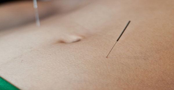 針灸加速修復周邊神經損傷