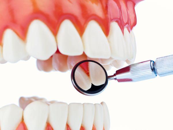 糖尿病第六大併發症 牙周病勿輕忽