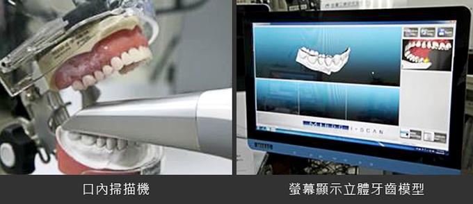 牙齒補缺學問大 治療前仔細評估可免醫糾