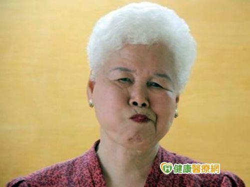 老人咀嚼功能退化 健口操可預防