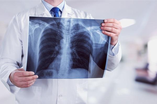 肺癌年輕化 醫師建議做「這個」檢查揪早期肺癌