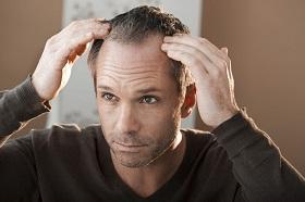 生髮產品搭配洗髮精,怎樣用效果最好?