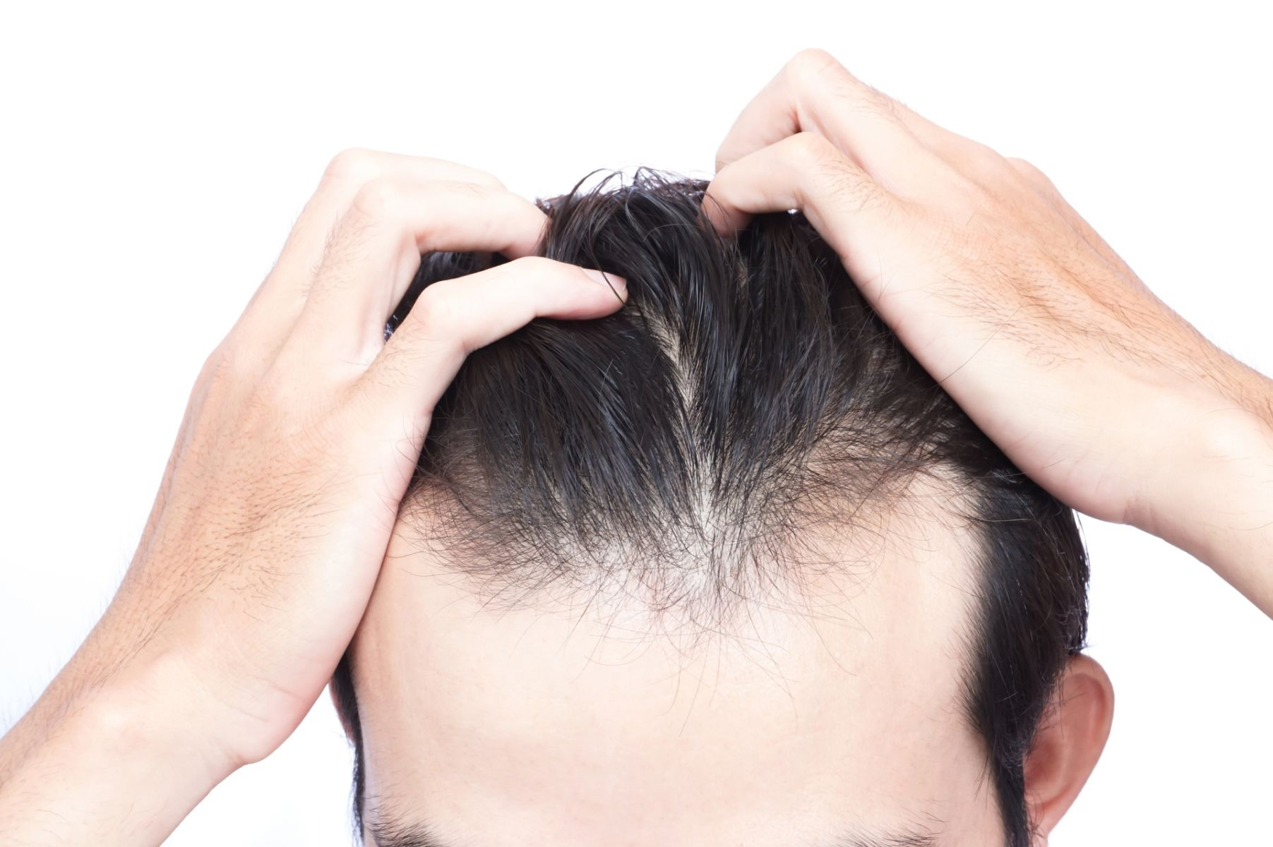 如何挑選植髮診所?專家教你辨別3大關鍵