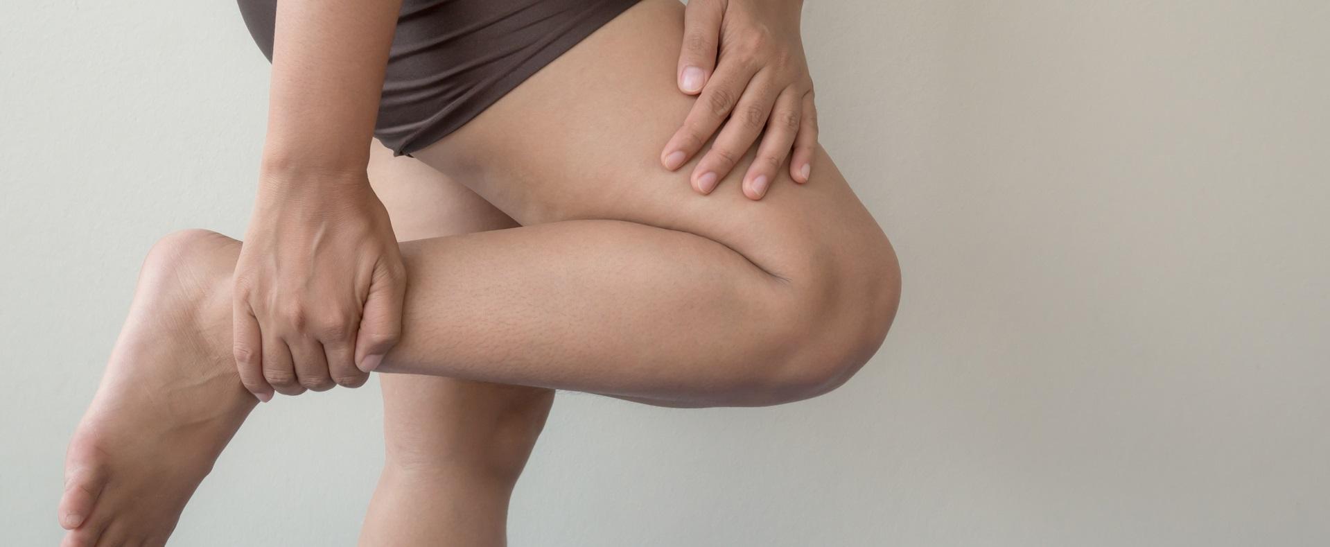 蘿蔔腿族易患慢性腎病 小腿肚逾36公分是警訊