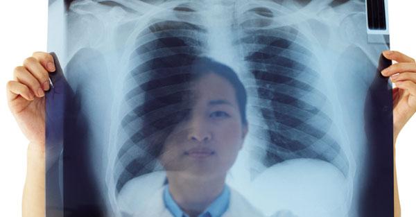 醫師的良心建議:向肺癌宣戰,請先從篩檢做起