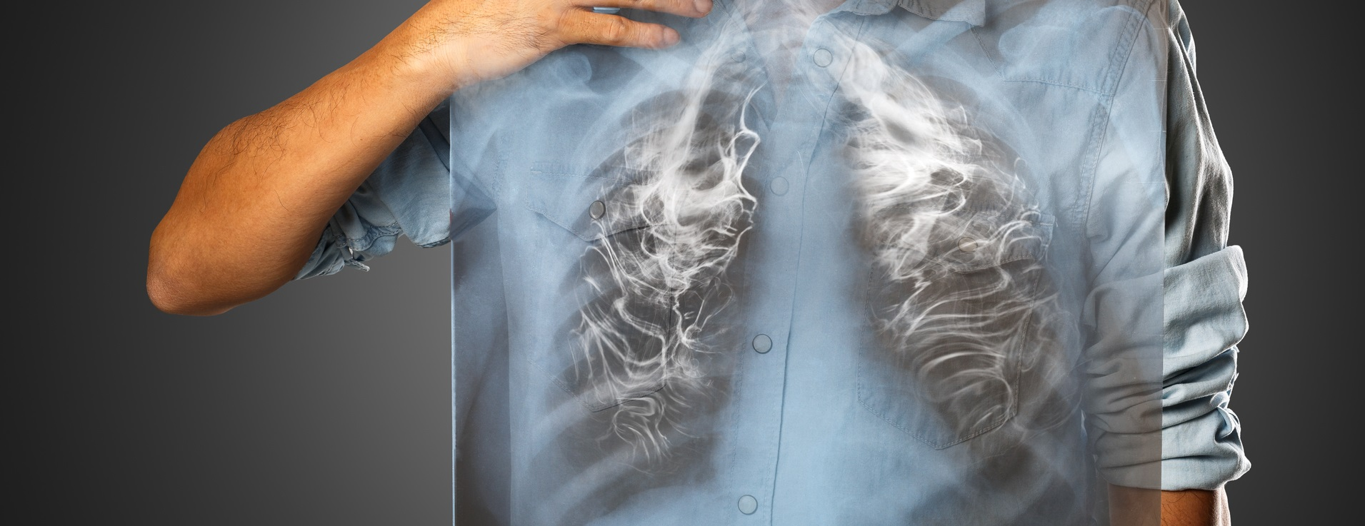 老菸槍肺阻塞上身 肺功能剩三分之一