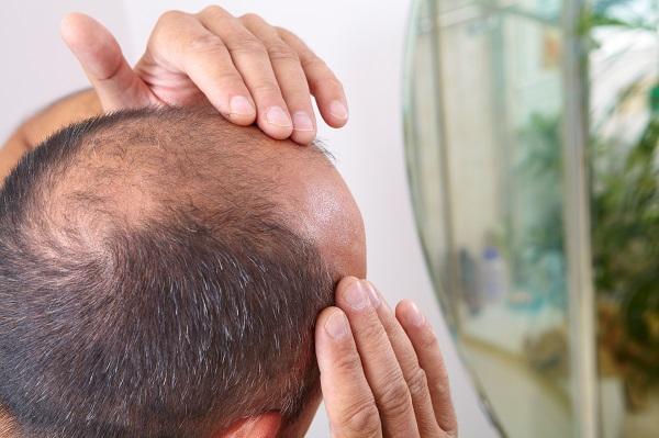 雄性禿超困擾!醫師解析正確治療觀念