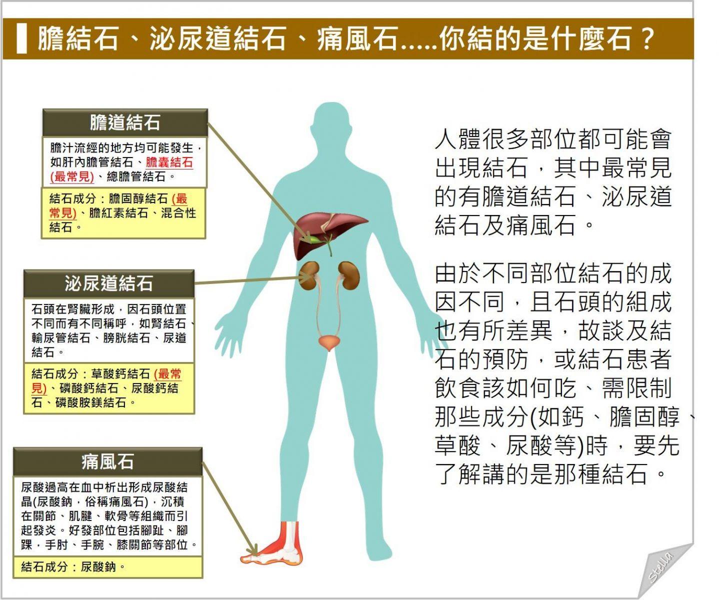 尿 管 結石 原因