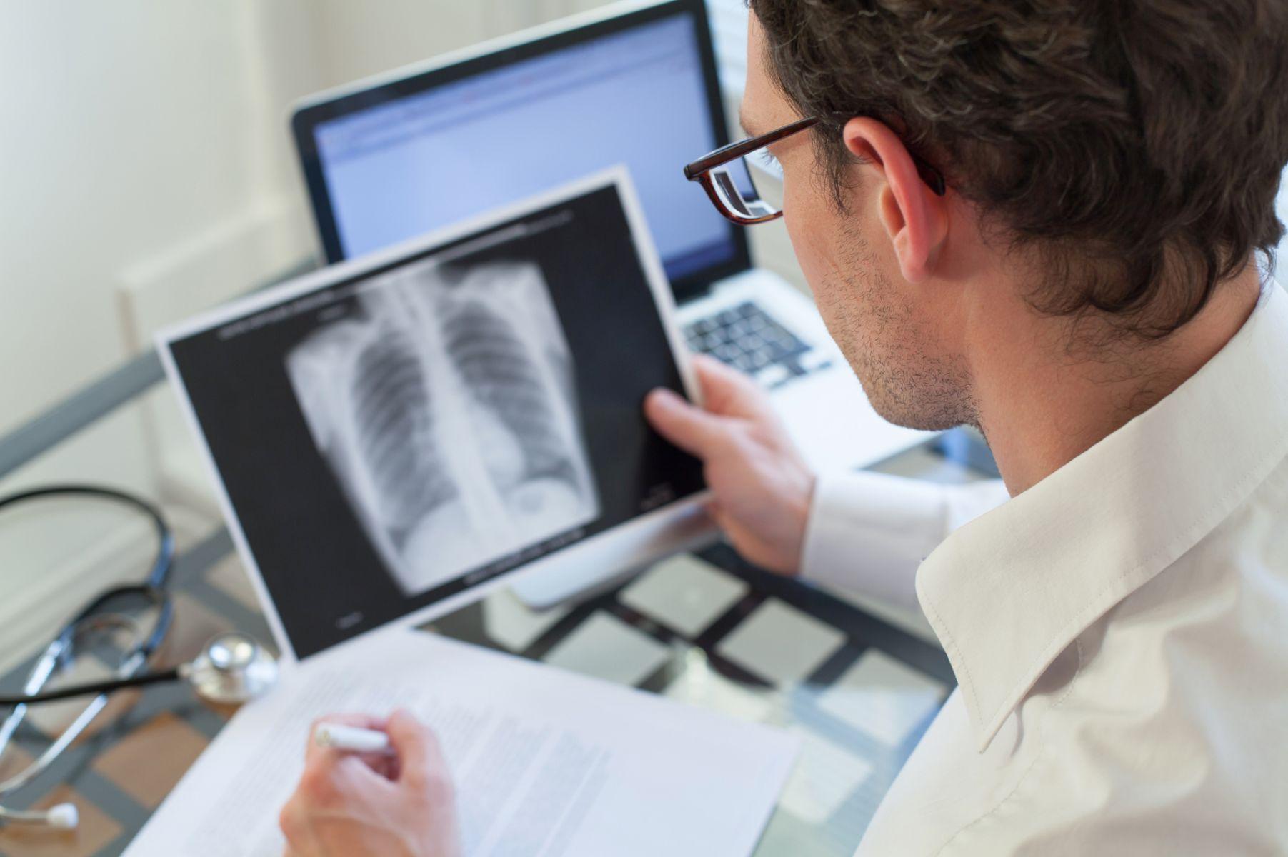 接觸到肺結核病人該怎麼辦?醫師提醒這樣因應