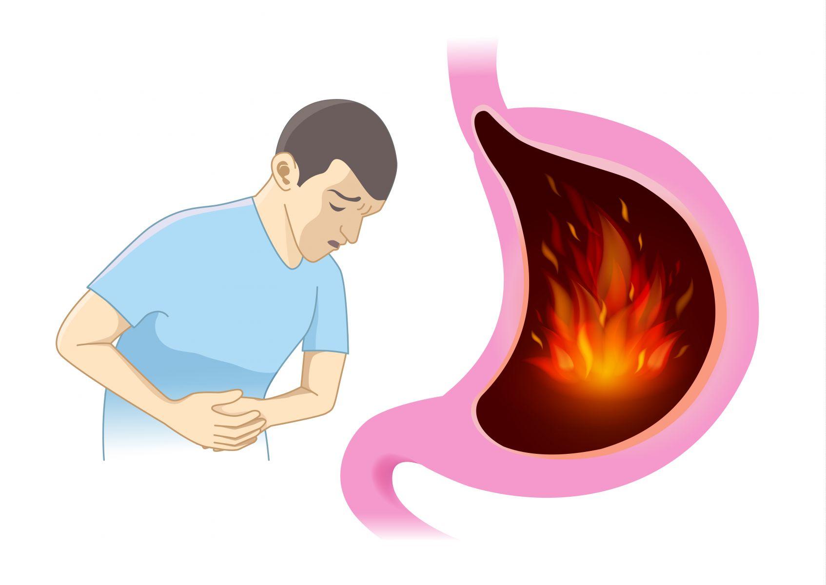 「胃食道逆流」有解!保胃5招 告別火燒心