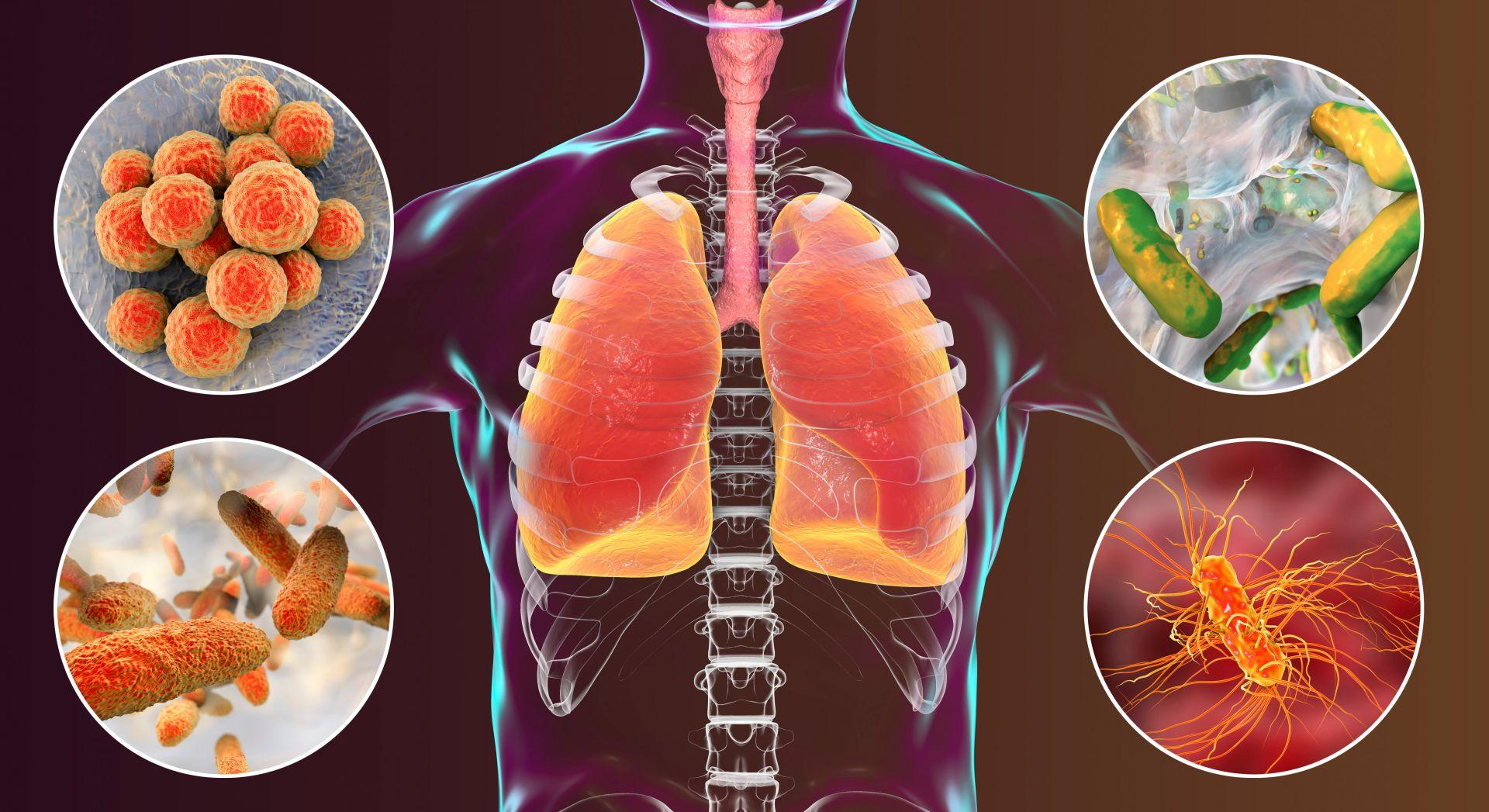 年奪1萬2千多條生命的肺炎 流感患者與65歲以上要當心!