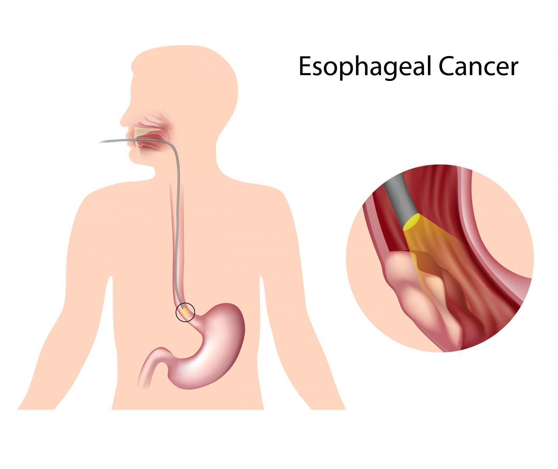 喉嚨卡卡、吞嚥困難 男性罹食道癌機率比女性多26倍!