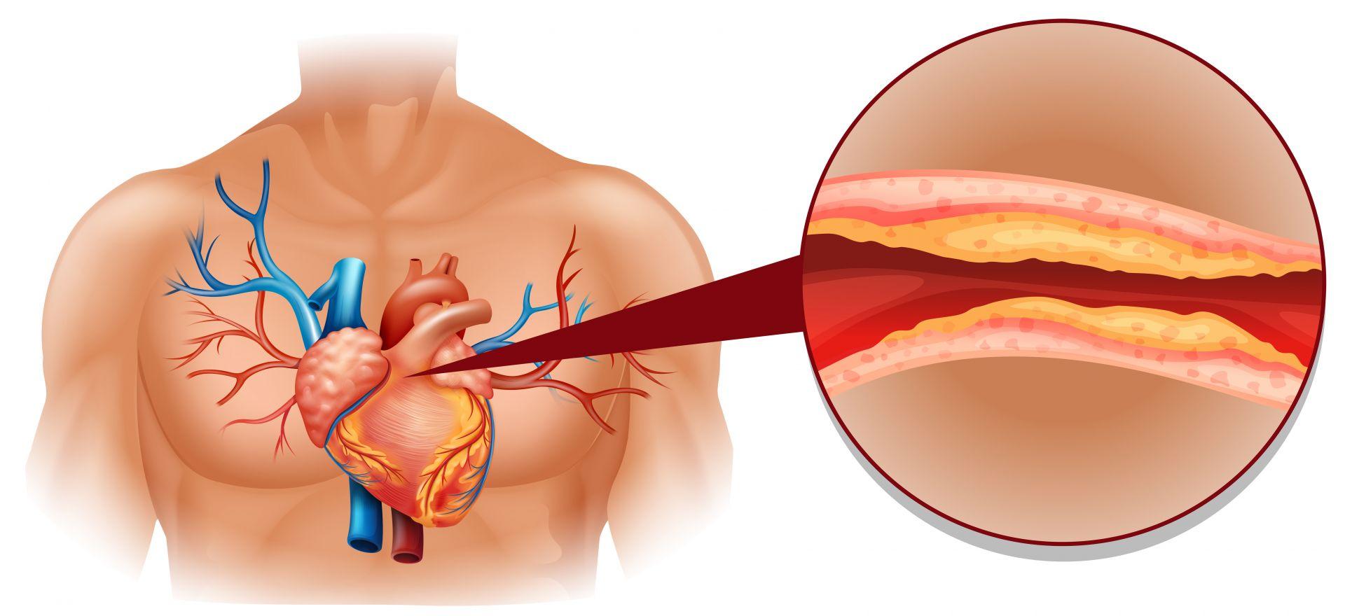 每5人就有1人血脂超標!壓力大、飲食不節……都是致病因子