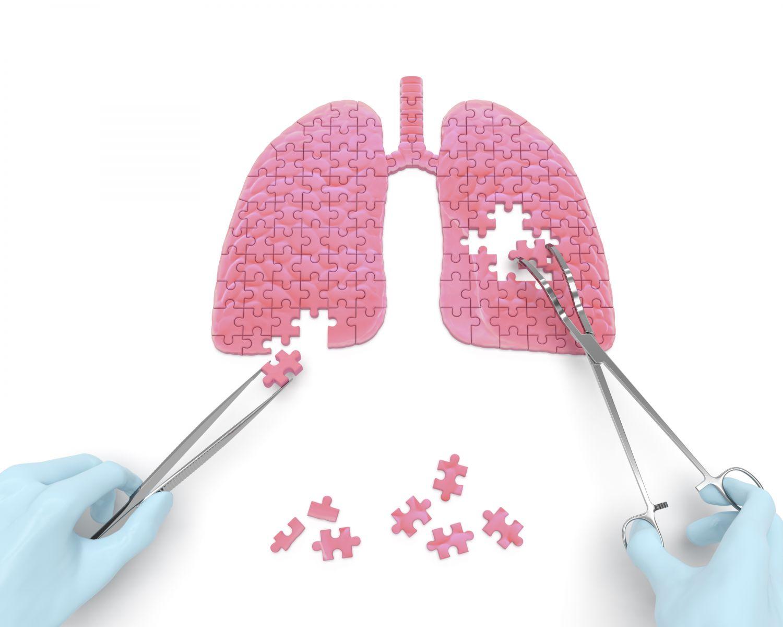 症狀不明難發現!「菜瓜布肺」死亡率比癌症還高?