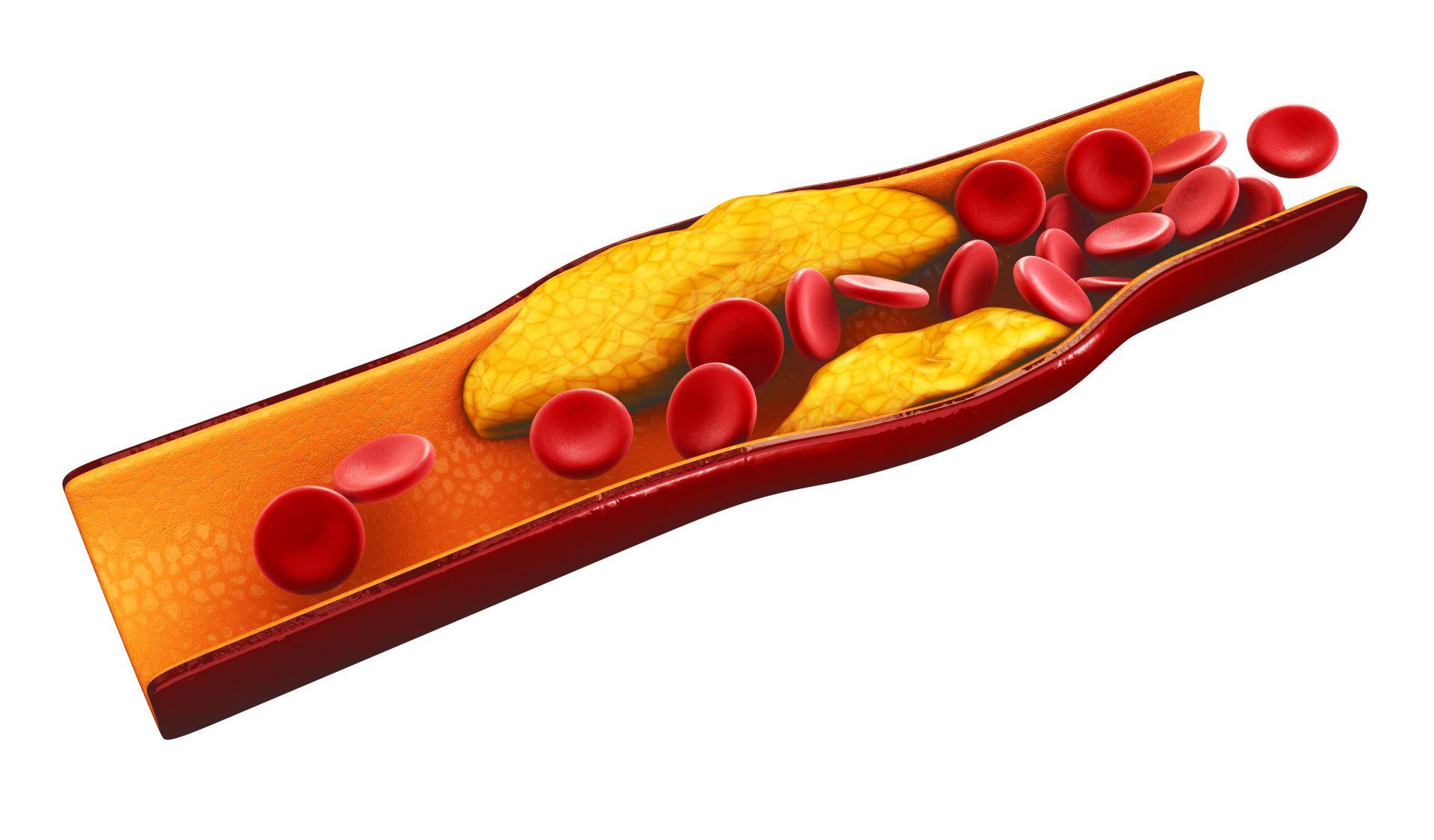 天天大餐血脂飆高 當心引發急性胰臟炎!