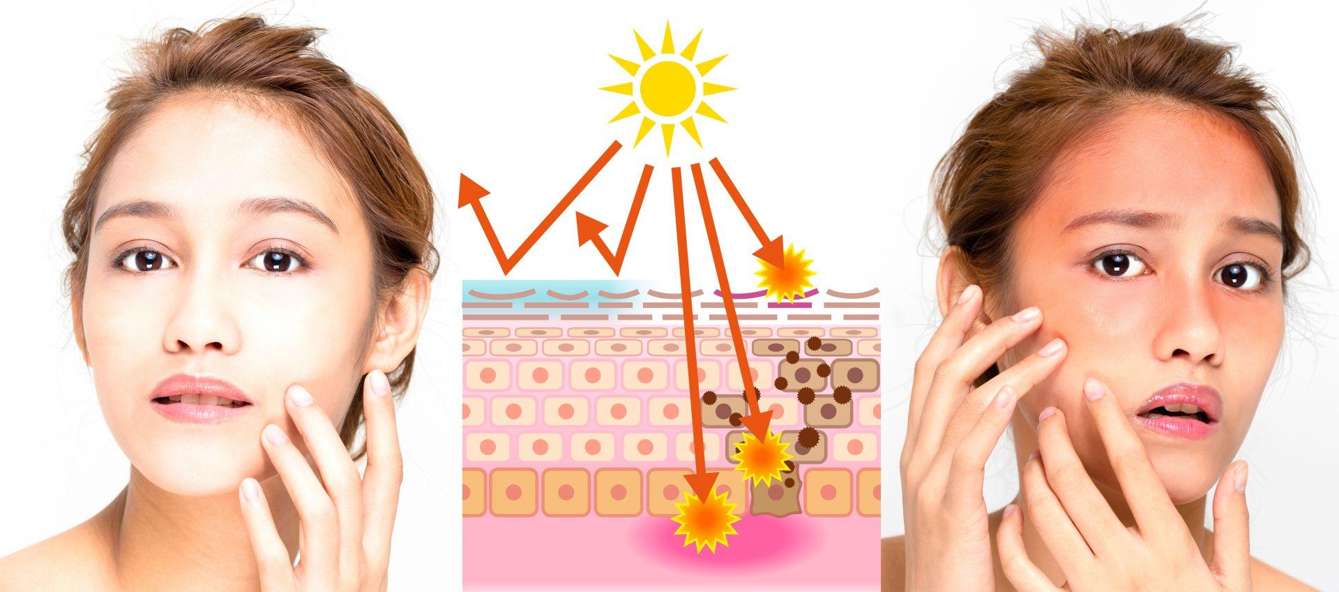 太陽一曬皮膚就發癢、起紅疹 你也是「光敏感」一族嗎?