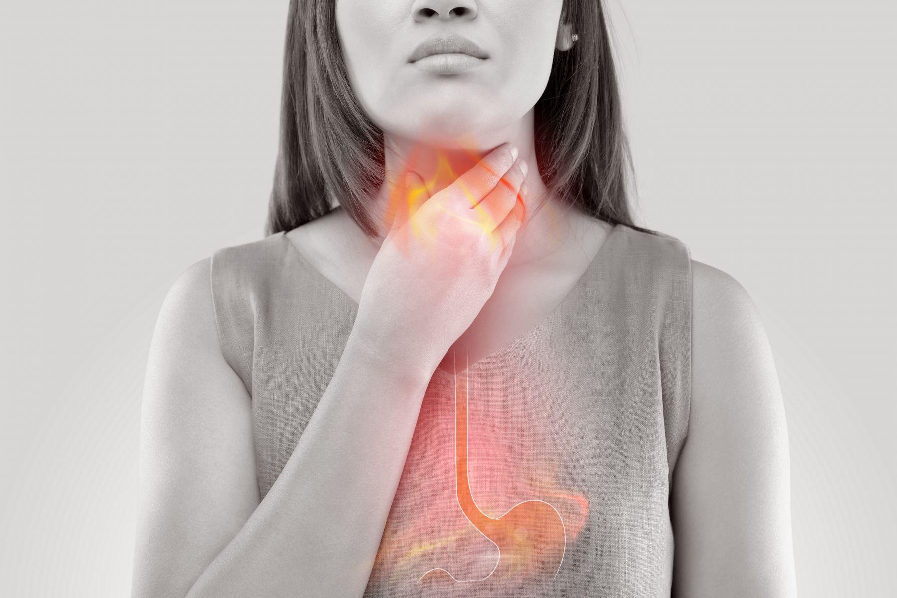 胃食道逆流恐增食道癌機率!5大高風險族群要注意
