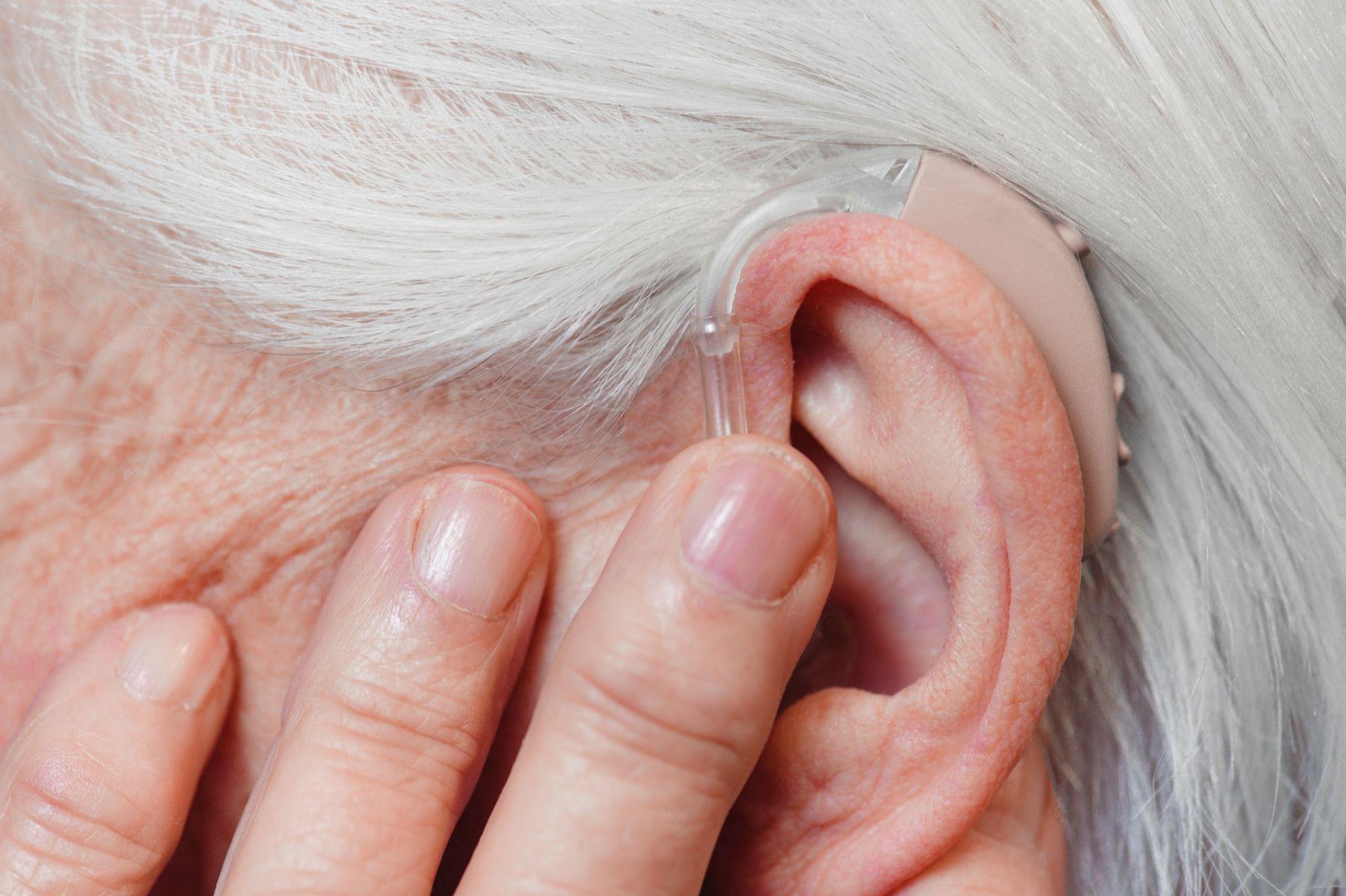 人工電子耳  可能助聾啞人士、中年失聰者找回聽力