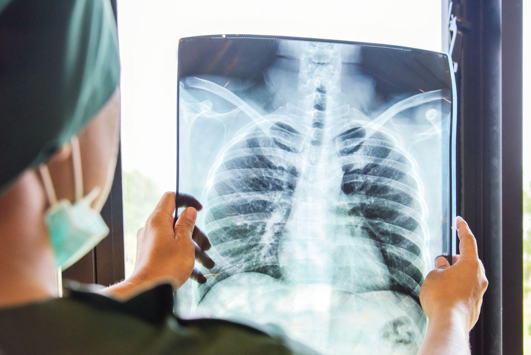 為何陳時中籲「想出國先忍忍」? 香港首批康復病患告訴你 何故肺功能再也回不去了